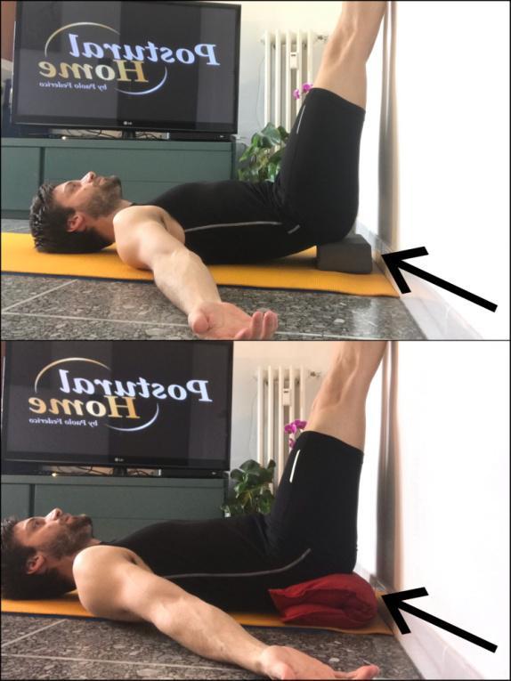 Spondilolistesi i muscoli della zona lombare