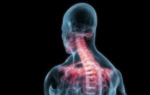 Cervicobrachialgia esercizi