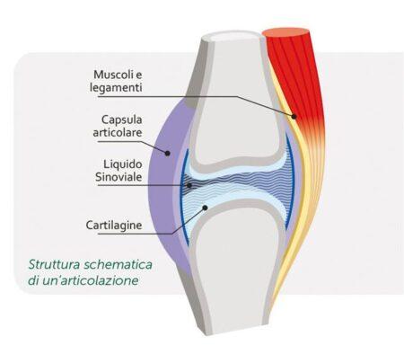 cavitazione articolare artrite